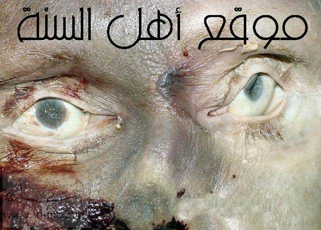 شوفو اجمل صورة مريحة للنفس  Www_sunna_info_man_blood_3